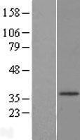 NBL1-11727 - HSD17B3 Lysate