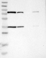 NBP1-85296 - 17-beta-HSD4 / HSD17B4