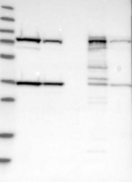 NBP1-85297 - 17-beta-HSD4 / HSD17B4