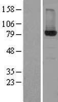 NBL1-11728 - HSD17B4 Lysate