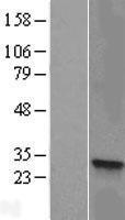 NBL1-11731 - HSD17B8 Lysate