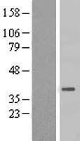 NBL1-11734 - HSD3B7 Lysate