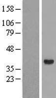 NBL1-07437 - HSD3a Lysate