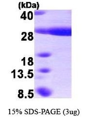 NBP1-41159 - HSPB8 / HSP22