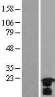 NBL1-11760 - HSPB7 Lysate
