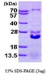 NBP1-41137 - HSPB7