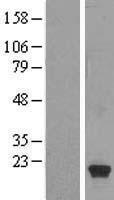 NBL1-11762 - HSPB9 Lysate
