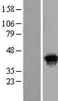 NBL1-08283 - HSPC142 Lysate