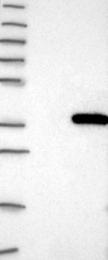 NBP1-89445 - HUS1