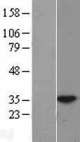 NBL1-11788 - HUS1 Lysate