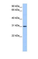 NBP1-54582 - HUS1B
