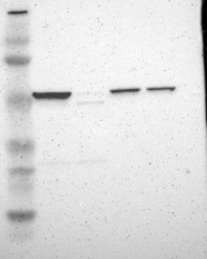 NBP1-83409 - HYAL1 / Hyaluronidase-1