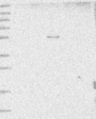 NBP1-81283 - HYAL2 / Hyaluronidase-2