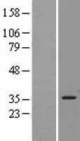 NBL1-11624 - Heme Oxygenase 1 Lysate