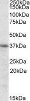 NBP1-36745 - Heme oxygenase 2 (HMOX2)