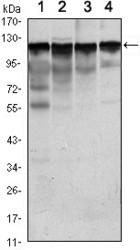NBP1-51644 - Hexokinase-1