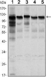 NBP1-51639 - Hexokinase-1