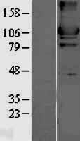 NBL1-11579 - Hexokinase II Lysate