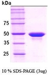 NBC1-18383 - Protein phosphatase 1A / PPM1A