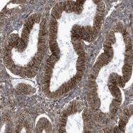 NBP1-90058 - Histamine H4 receptor