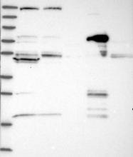 NBP1-89694 - Histidase