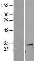 NBL1-11552 - Histone H1.5 Lysate