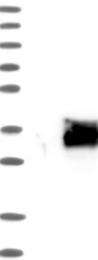 NBP1-82478 - SIX6