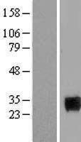 NBL1-15985 - Homeobox protein SIX6 Lysate
