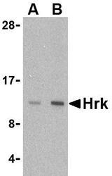 NBP1-76414 - Harakiri / HRK