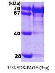 NBP1-30278 - HSPA8 / HSC70