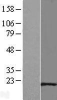NBL1-11759 - Hsp20 Lysate