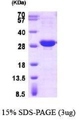 NBP1-30308 - HSPB1 / HSP27
