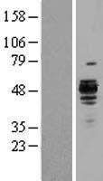 NBL1-15857 - Hsp47 Lysate