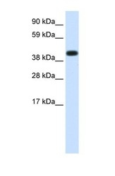 NBP1-56505 - Heat shock protein 70 / HSP70