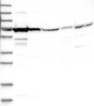 NBP1-85949 - HSPA6