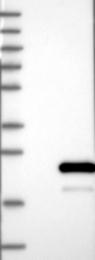 NBP1-88332 - HSPB11