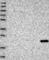 NBP1-81697 - HSPB2