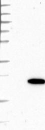 NBP1-84334 - HSPB7