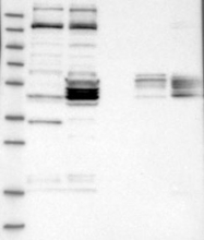 NBP1-87211 - HTRA3