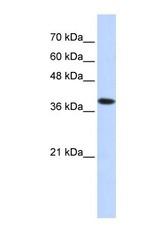 NBP1-60028 - ATP4B