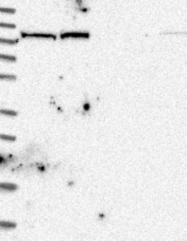 NBP1-84637 - Isoleucyl-tRNA synthetase / IARS2