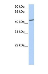 NBP1-55450 - Islet cell autoantigen 1 / ICA1