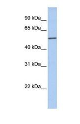 NBP1-56426 - Islet cell autoantigen 1 / ICA1
