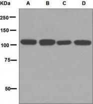 NBP1-95948 - Insulin-degrading enzyme