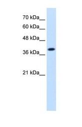 NBP1-54736 - Isocitric dehydrogenase alpha / IDH3A