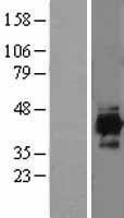 NBL1-11819 - IDH3A Lysate