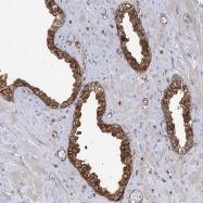 NBP1-85862 - IPP isomerase 1 / IDI1