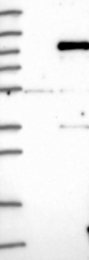 NBP1-83118 - IFI16 / IFNGIP1