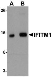 NBP1-77171 - CD225 / IFITM1