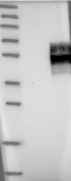 NBP1-90223 - IFNGR2 / IFNGT1